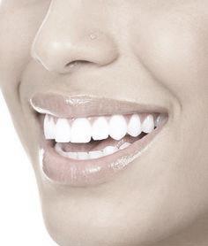 Smil med hvite tenner